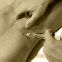 Traumatología, Infiltraciòn rodilla