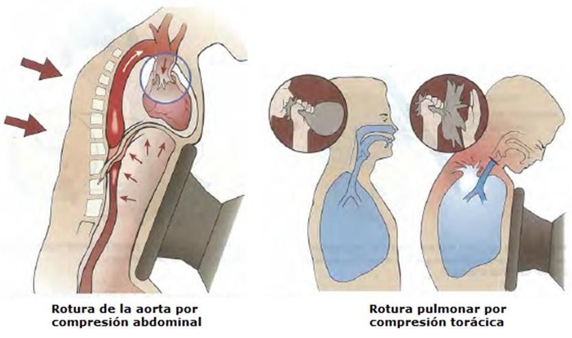 Lesiones accidente de trafico Torax Cuidate fisioterapia Murcia