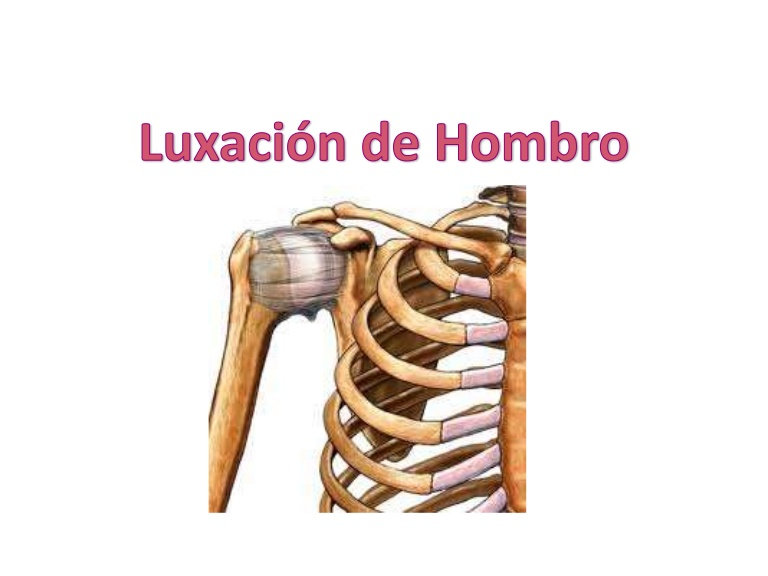 sintomas luxacion de hombro