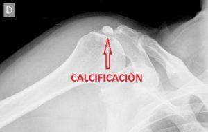 Tendinitis Calcificada 04 Cuidate fisioterapia
