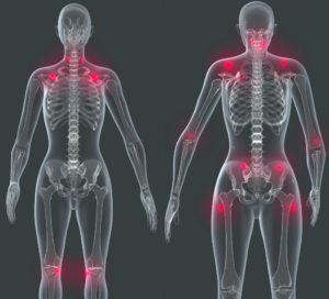 Fibromialgia 07 Cuidate Fisioterapia y Estetica