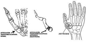 Rizartrosis de pulgar Cuidate Fisioterapia y Estetica 15