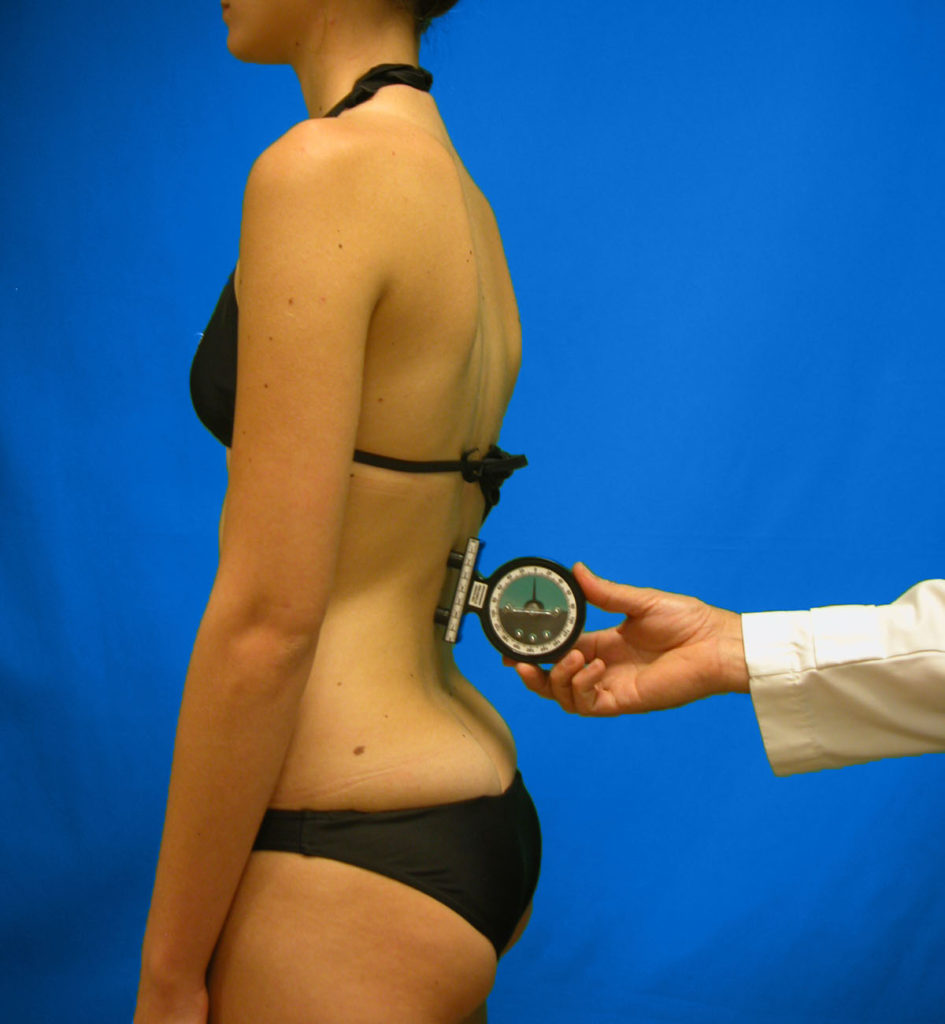 Enfermedad de Scheuermann Cuidate Fisioterapia 15