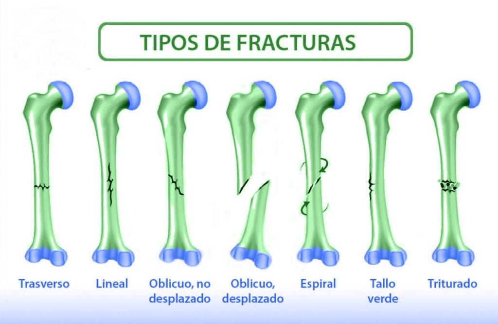 Lesiones articulares cuidate fisioterapia y Estetica 0020