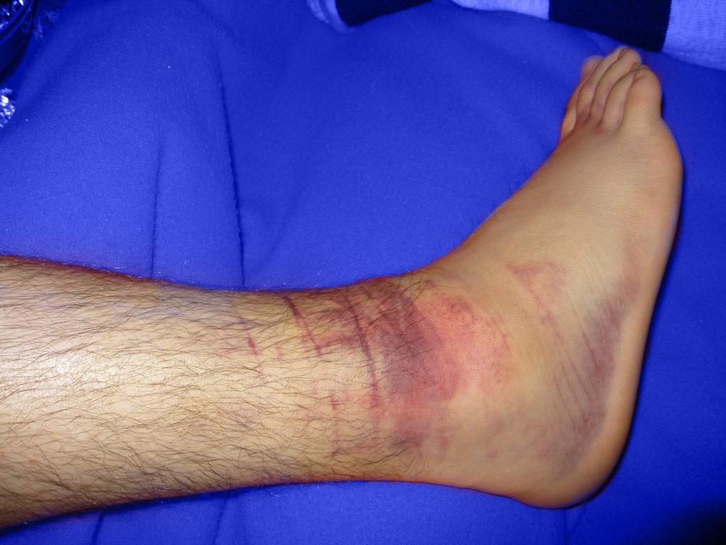 Lesiones articulares cuidate fisioterapia y Estetica 05
