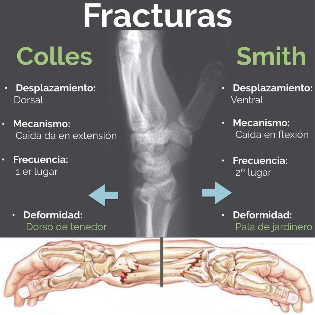 Fractura de Coller y Smith radiografia 01
