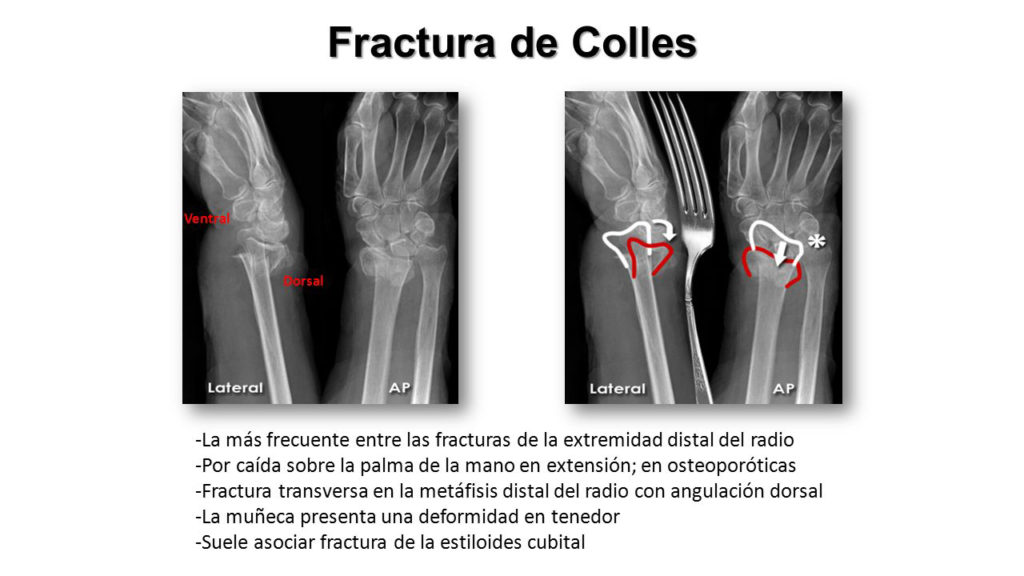 Fractura de Coller y Smith radiografia 07