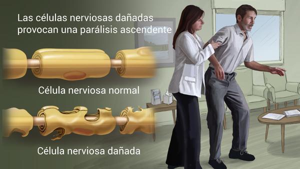 Sindrome Guillain-Barré Cuidate-Fisioterapia y Estetica 05