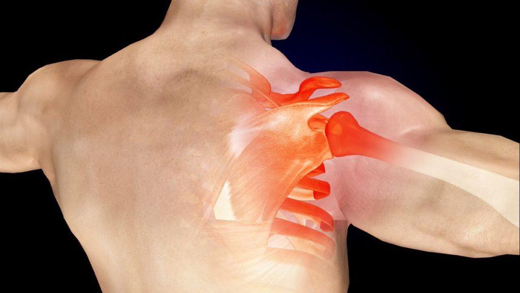 Terapia Capsulitis Adhesiva Cuidate Fisioterapia y Estetica 08