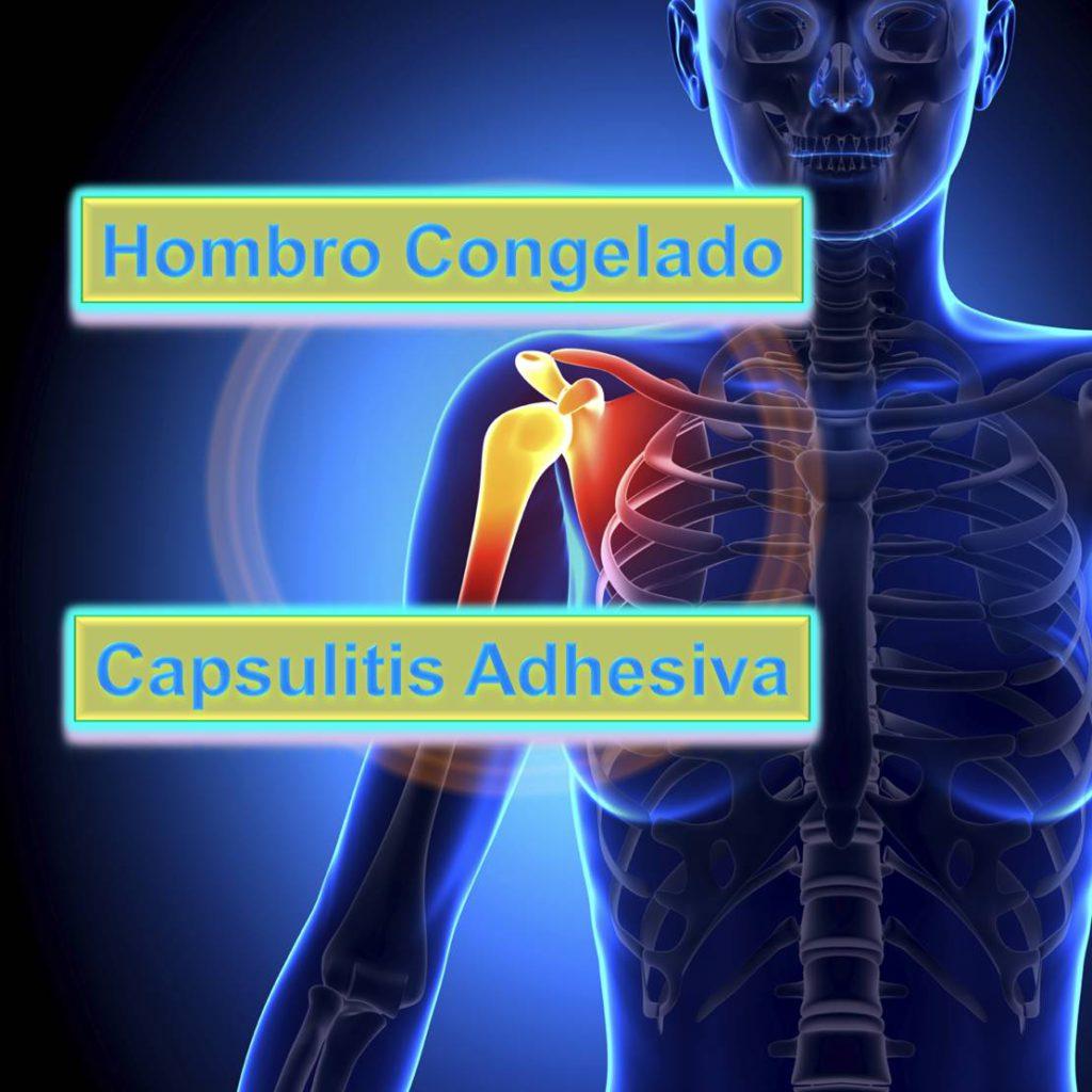 Terapia Hombro Congelado Cuidate Fisioterapia y Estetica 03